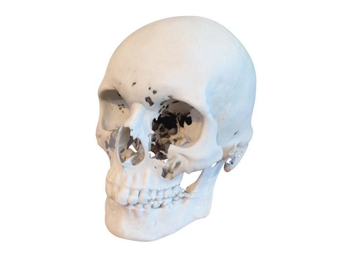 Médical - impression 3D - prototypage rapide